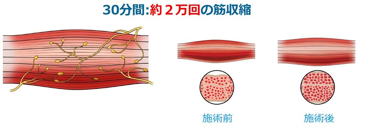 エムスカルプトの構造