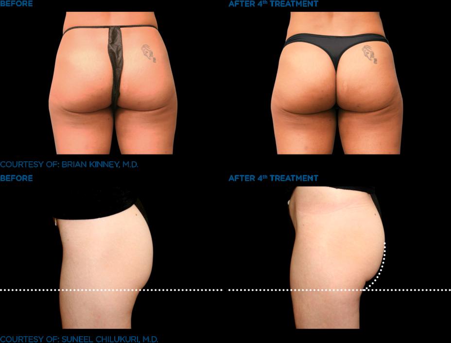 エムスカルプトの施術実績臀部